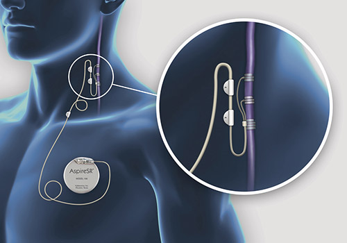 迷走神経刺激療法(VNS療法)